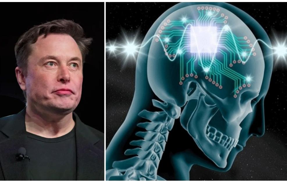 मानव मस्तिष्कमा यसै वर्ष कम्प्युटर चिप राखिने